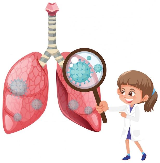 Diagramma che mostra i polmoni umani con cellule di coronavirus Vettore Premium