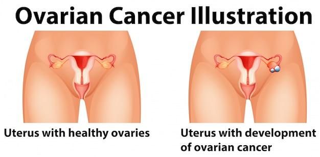 Diagramma che mostra il cancro ovarico in umani Vettore gratuito