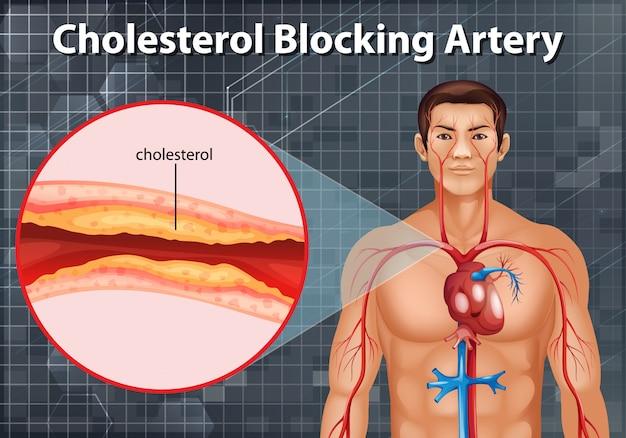 Diagramma che mostra l'arteria che blocca il colesterolo nel corpo umano Vettore gratuito