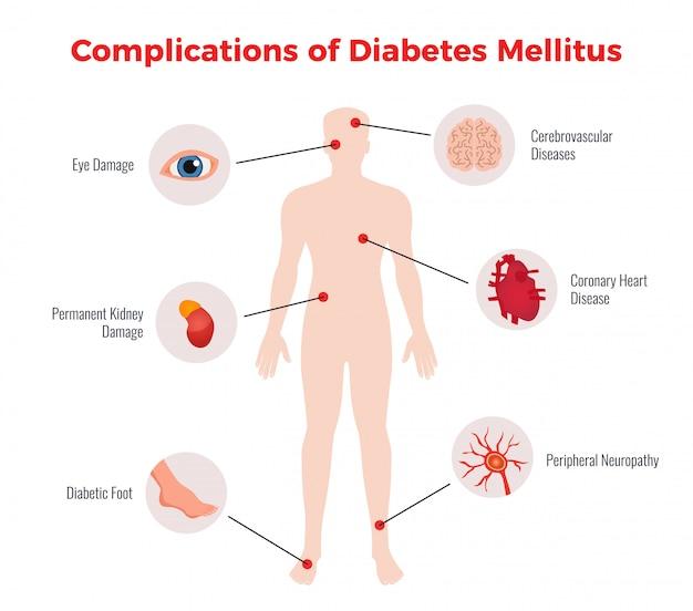 Diagramma educativo medico delle complicanze del diabete con rappresentazione e descrizione dei danni degli organi umani colpiti piatta Vettore gratuito