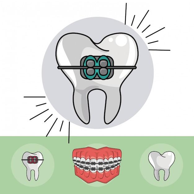 Elementi di parentesi dentale Vettore Premium
