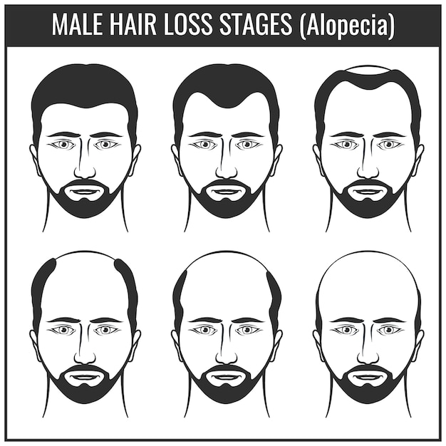 Fasi di perdita di capelli e tipi di calvizie Vettore Premium