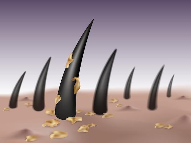 Forfora nei capelli e cuoio capelluto causando germi e vesciche o brufoli sulla testa. Vettore Premium