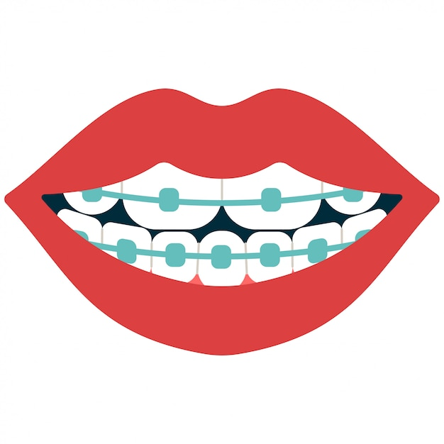 Fumetto dei ganci dentali isolato su bianco Vettore Premium