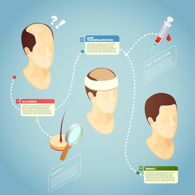 Illustrazione di vettore di trapianto di capelli Vettore gratuito