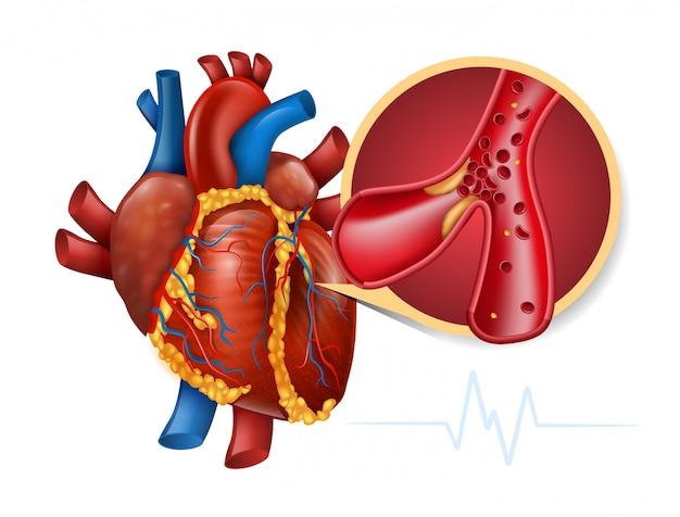 Infarto miocardico Vettore Premium