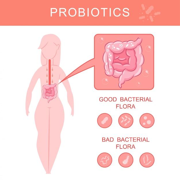 Infographics di probiotici con la siluetta e l'intestino della donna con l'illustrazione buona e cattiva del fumetto di vettore della flora batterica. Vettore Premium
