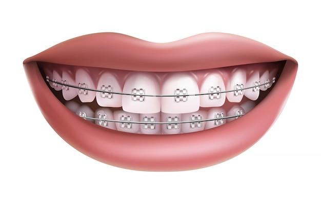 Isolato su sfondo bianco, sorridere con denti bianchi e parentesi graffe. Vettore Premium