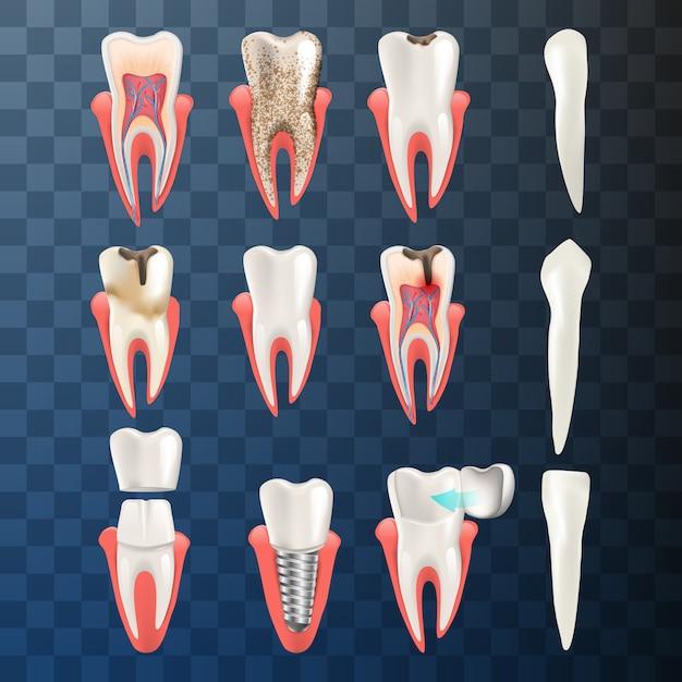 L'illustrazione realistica ha fissato il problema differente dei denti Vettore Premium
