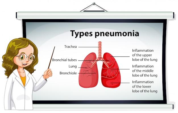 Medico che spiega i tipi di polmonite Vettore gratuito