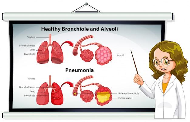 Medico che spiega sano bronchiolo e alveoli Vettore gratuito