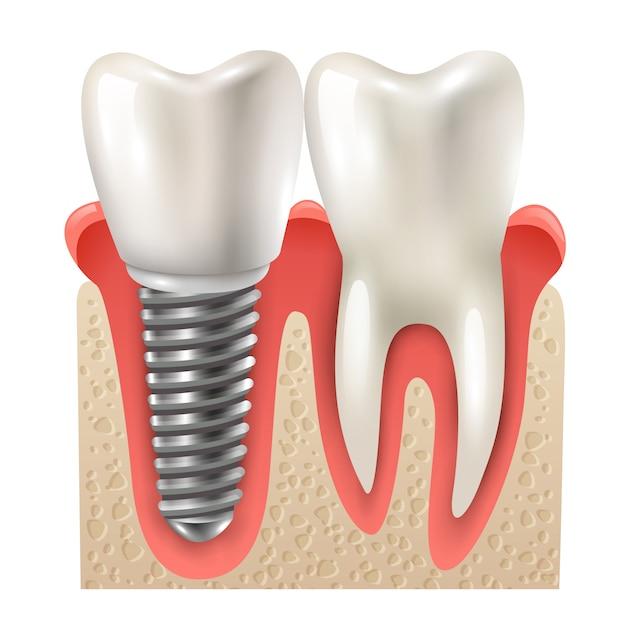 Modello del primo piano del dente stabilito dell'impianto dentale Vettore gratuito
