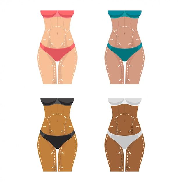 Perdita di peso, segni sul corpo femminile per la chirurgia plastica. Vettore Premium