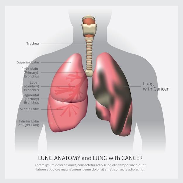Polmone con dettagli e cancro ai polmoni Vettore Premium