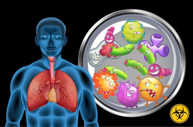 Polmoni umani pieni di malattie su sfondo nero Vettore gratuito