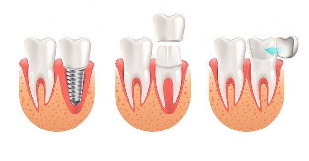 Procedura dei denti per il ripristino della corona impiallacciata Vettore Premium