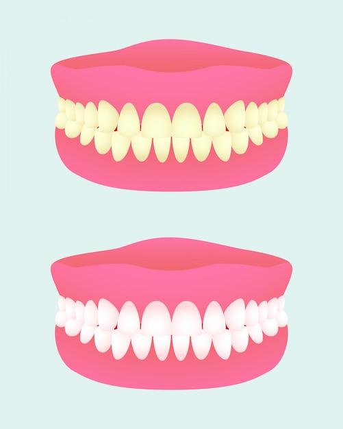 Protesi dentaria in due stati di salute. impianto dentale con diversi colori di denti. mascella malata e sana dei denti. articoli medici. Vettore Premium