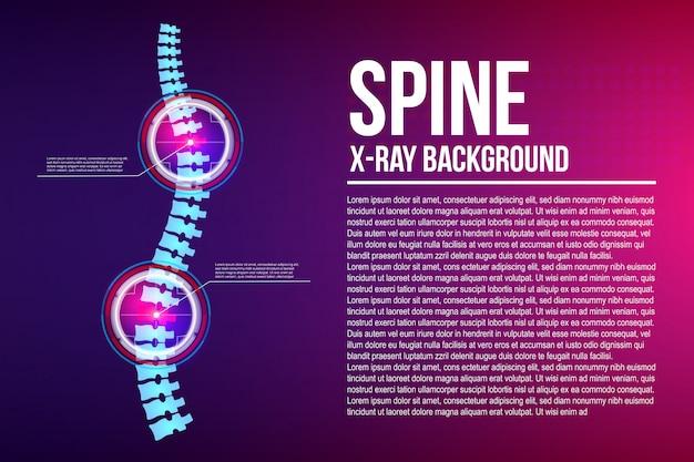 Radiografia della colonna vertebrale Vettore Premium