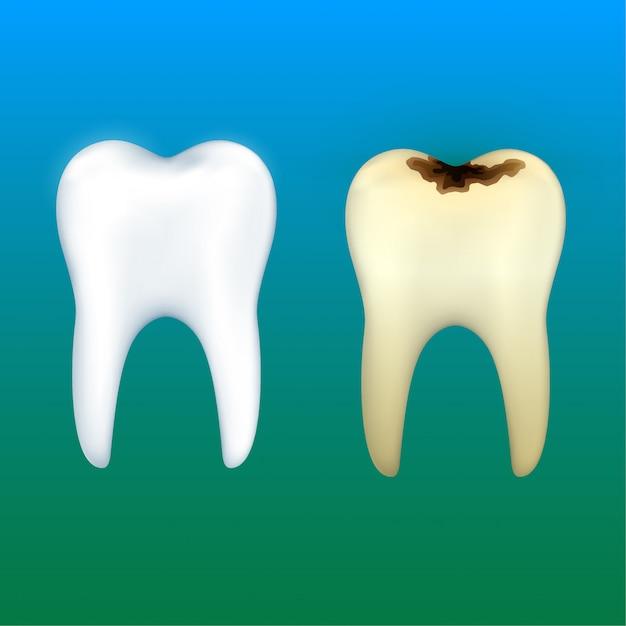 Sbiancamento dei denti e carie dentaria, vettore di salute dentale. Vettore Premium