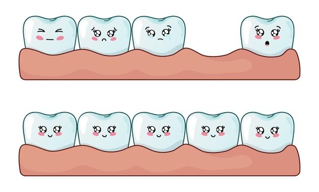 Set di denti kawaii, denti sani e problemi di perdita dei denti Vettore Premium