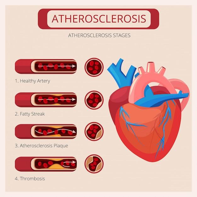 Stadi di aterosclerosi. infographics medico di vettore del sistema circolatorio del sangue di attacco del trombo dei colpi di cuore Vettore Premium
