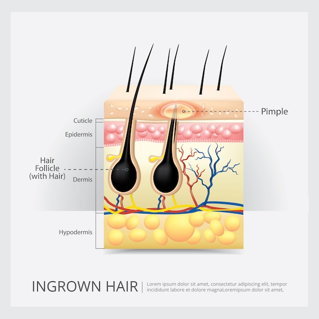 Struttura dei capelli ingrown Vettore Premium