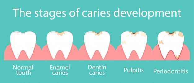 Sviluppo della carie dentale nella cavità orale. Vettore Premium