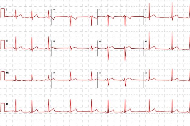Tipico elettrocardiogramma umano, grafico rosso con segni Vettore Premium