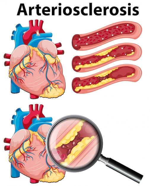 Un Cuore Con Arteriosclerosi Su Sfondo Bianco Scaricare Vettori