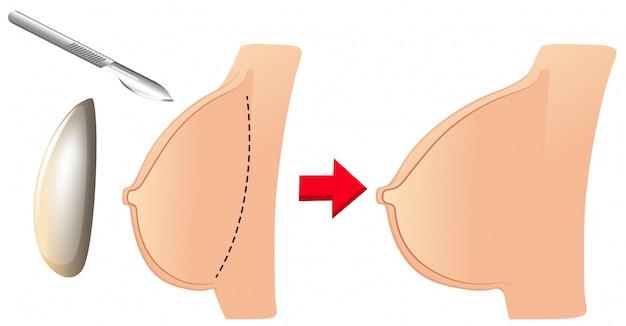 Una serie di aumento del seno Vettore gratuito