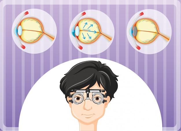 Uomo con gli occhiali e problema agli occhi Vettore gratuito