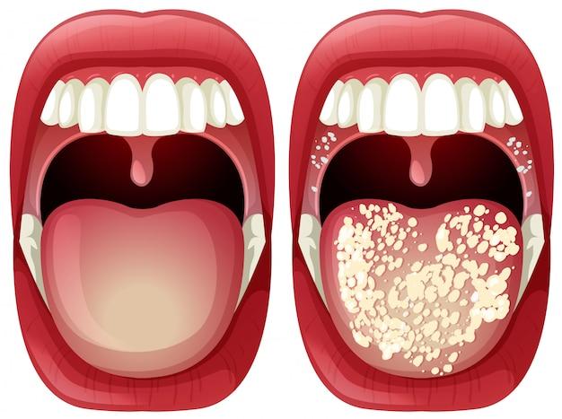 Vettore di bocca sana e virus Vettore Premium