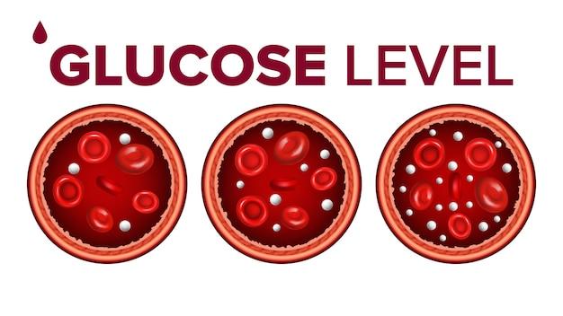 Zucchero glucosio nel sangue e globuli rossi Vettore Premium
