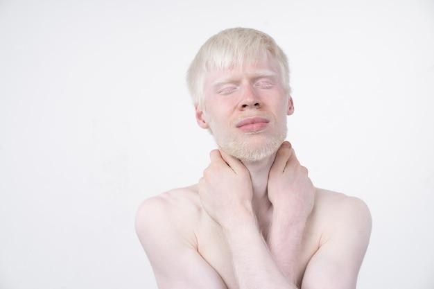 Albinisme albino man in studio gekleed t-shirt geïsoleerd op een witte achtergrond. abnormale afwijkingen. ongebruikelijk uiterlijk. huidafwijking Premium Foto