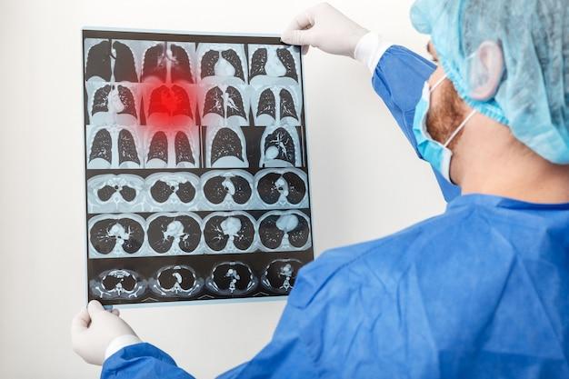 Arts-chirurg in beschermende uniforme check up longen scan. coronavirus covid-19, longontsteking, tuberculose, longkanker, luchtwegaandoeningen. concept van geneeskunde en gezondheidszorg Premium Foto
