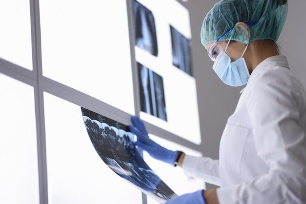 Arts in beschermend medisch masker en handschoenen onderzoekt een röntgenfoto. Premium Foto