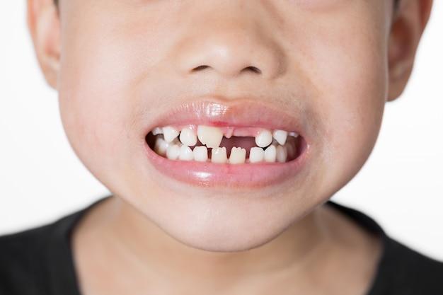 Aziatische jongen gebroken tand op witte achtergrond Premium Foto