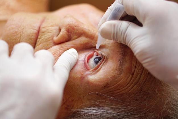 Aziatische senior of oudere oude dame vrouw druipende medische druppels in haar oog door arts Premium Foto