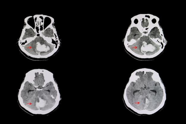 Cerebellar bloeding Premium Foto