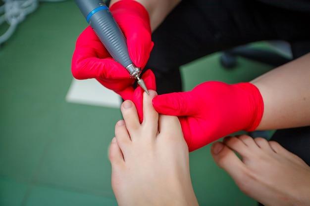 Chiropodist die teennagelschimmel behandelt. podologiebehandeling. Premium Foto