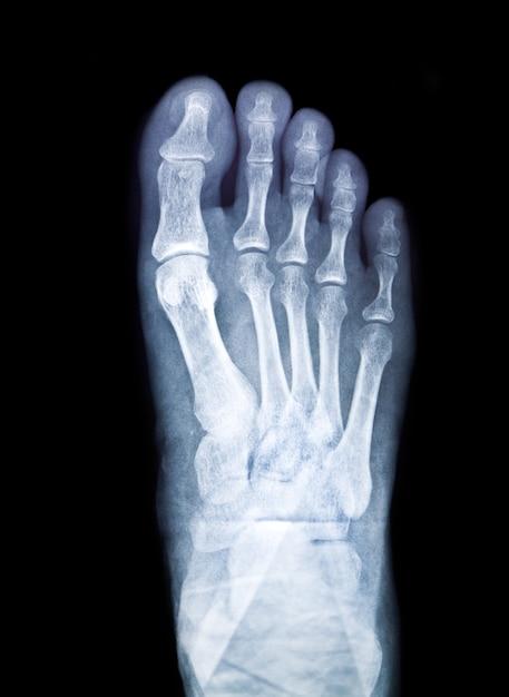Chirurgie straal technologie x-ray xray Gratis Foto