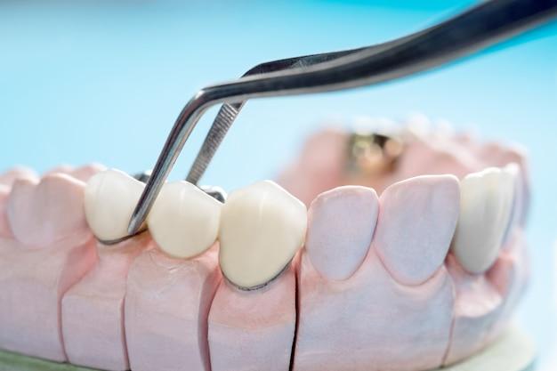 Close / prosthodontics of prothetische / tand kroon en brug implantaat tandheelkunde apparatuur en model express fix restauratie. Premium Foto