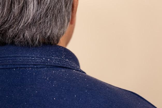 Close-up beeld van een man die veel roos van zijn haar op zijn shirt en schouders heeft Premium Foto