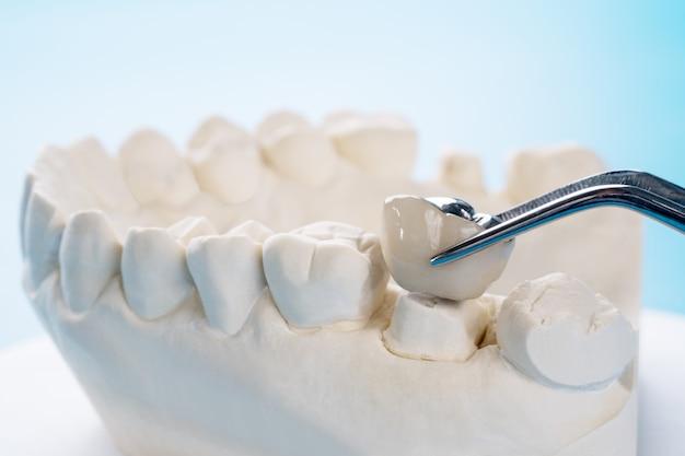 Close-up implan-model tandsteunbrug implan en kroon. Premium Foto