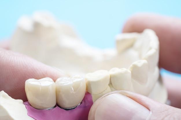 Close-up / implantaat prothodontie of prothetische / tand kroon en brug implantaat tandheelkunde apparatuur en model express fix restauratie. Premium Foto