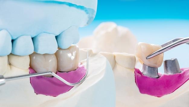 Close-up / implantaatprothetiek of prothese / tandkroon en brug implantaat tandheelkundige apparatuur en model express fix restauratie. Premium Foto