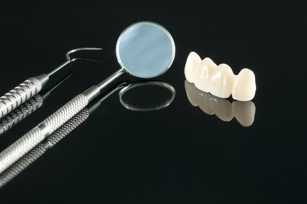 Close-up / prothetiek of prothese / tand kroon- en brugimplantaat tandheelkundige apparatuur en model express fix restauratie. Premium Foto