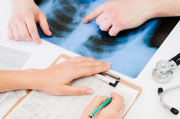 Close-up van arts die het ecg medische rapport met patiënt wat betreft de röntgenstraal op lijst onderzoekt Gratis Foto