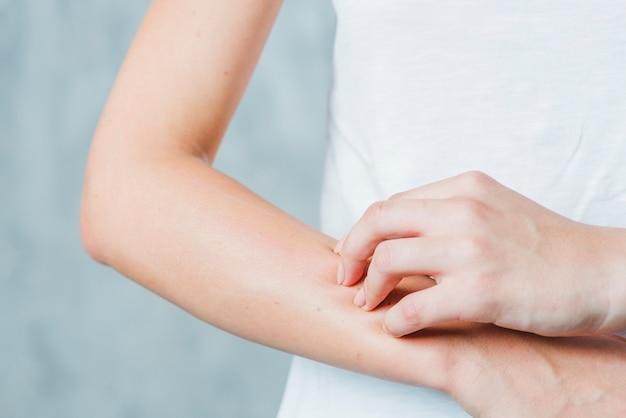 Close-up van de hand die van een vrouw haar hand krast Gratis Foto
