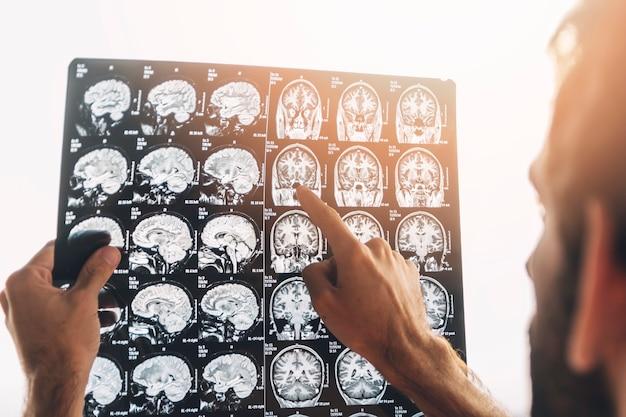 Close-up van een mannelijke arts onderzoekt MRI-x-ray Gratis Foto